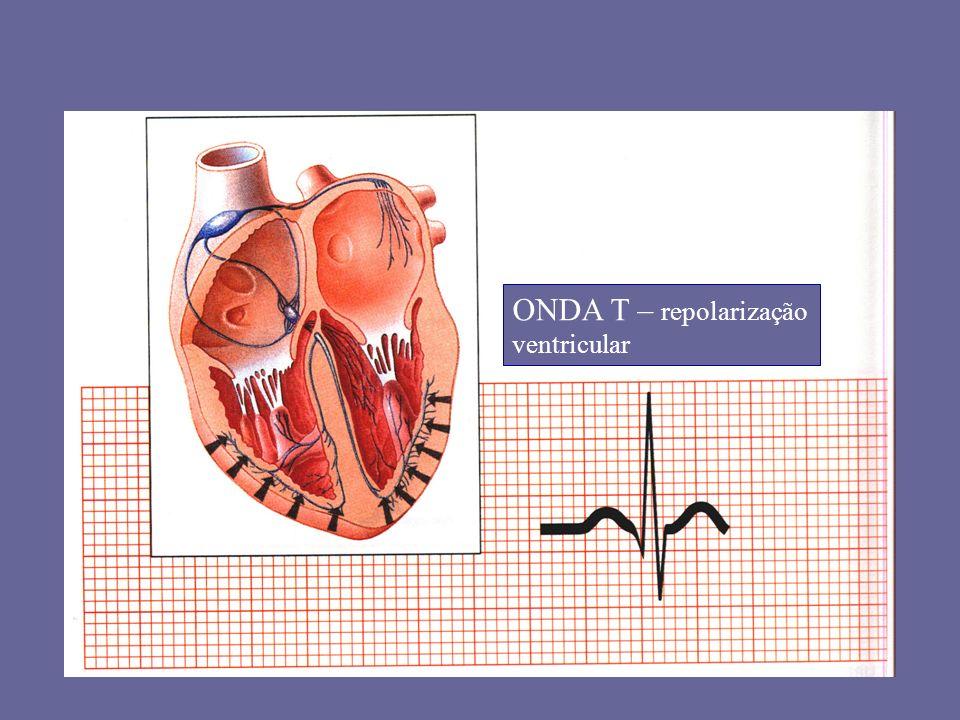 ONDA T – repolarização ventricular