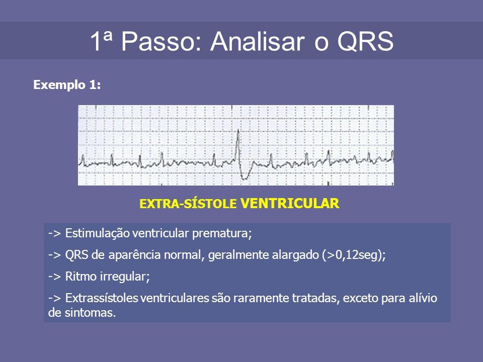 1ª Passo: Analisar o QRS Exemplo 1: EXTRA-SÍSTOLE VENTRICULAR -> Estimulação ventricular prematura; -> QRS de aparência normal, geralmente alargado (>