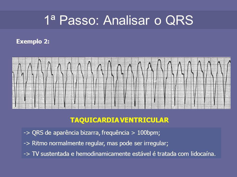 1ª Passo: Analisar o QRS Exemplo 2: TAQUICARDIA VENTRICULAR -> QRS de aparência bizarra, frequência > 100bpm; -> Ritmo normalmente regular, mas pode s