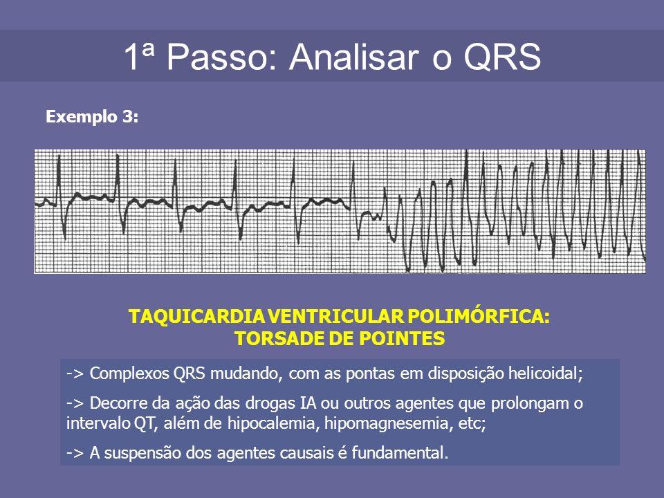 1ª Passo: Analisar o QRS Exemplo 3: TAQUICARDIA VENTRICULAR POLIMÓRFICA: TORSADE DE POINTES -> Complexos QRS mudando, com as pontas em disposição heli