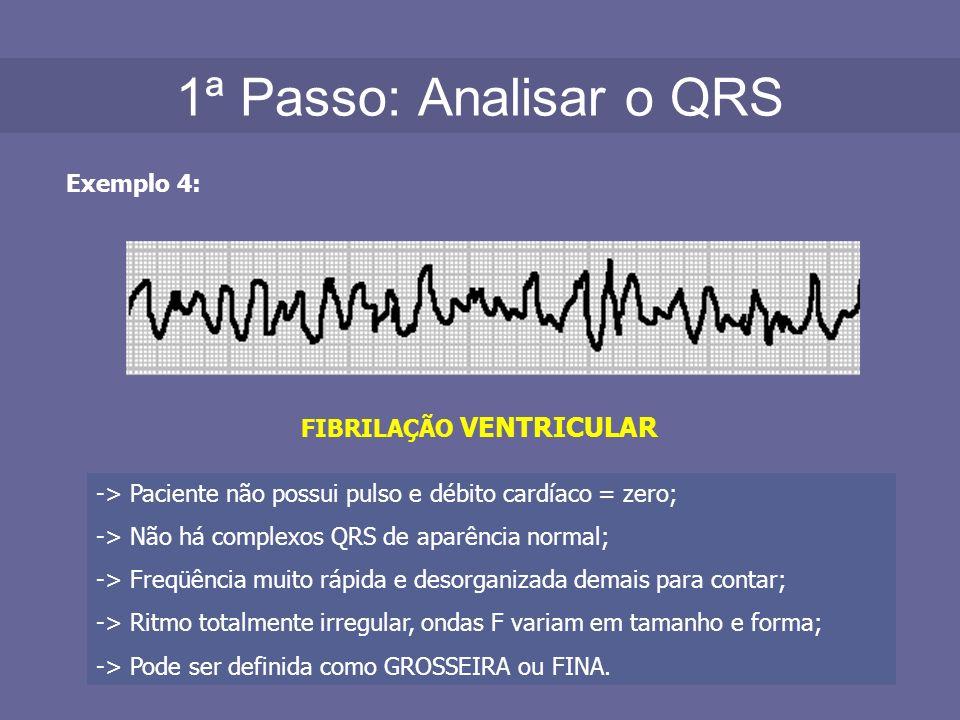 1ª Passo: Analisar o QRS Exemplo 4: FIBRILAÇÃO VENTRICULAR -> Paciente não possui pulso e débito cardíaco = zero; -> Não há complexos QRS de aparência