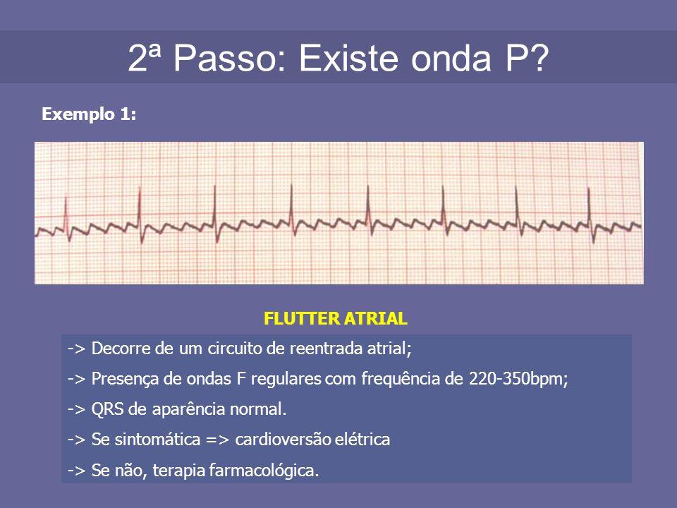 2ª Passo: Existe onda P? Exemplo 1: FLUTTER ATRIAL -> Decorre de um circuito de reentrada atrial; -> Presença de ondas F regulares com frequência de 2