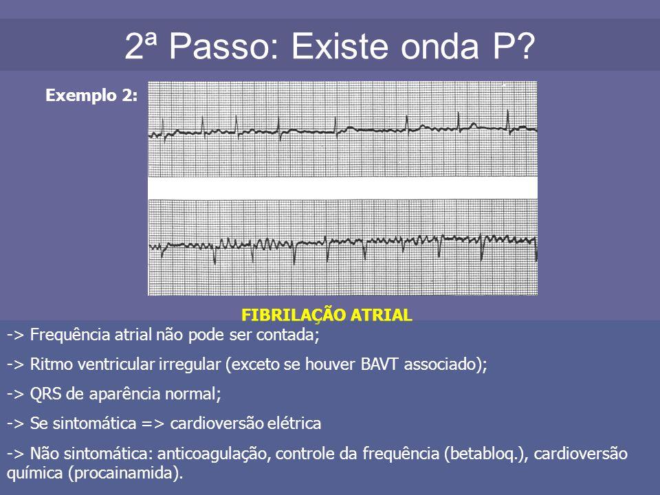 2ª Passo: Existe onda P? Exemplo 2: FIBRILAÇÃO ATRIAL -> Frequência atrial não pode ser contada; -> Ritmo ventricular irregular (exceto se houver BAVT