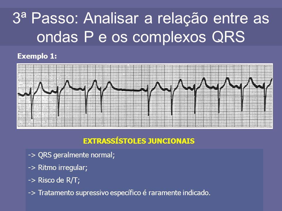 3ª Passo: Analisar a relação entre as ondas P e os complexos QRS Exemplo 1: EXTRASSÍSTOLES JUNCIONAIS -> QRS geralmente normal; -> Ritmo irregular; ->
