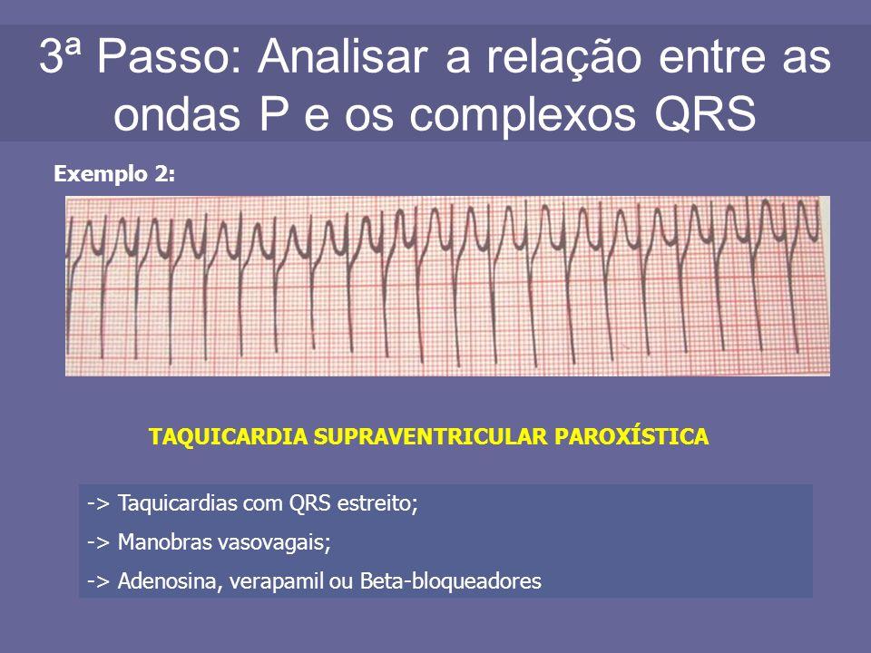 3ª Passo: Analisar a relação entre as ondas P e os complexos QRS Exemplo 2: TAQUICARDIA SUPRAVENTRICULAR PAROXÍSTICA -> Taquicardias com QRS estreito;