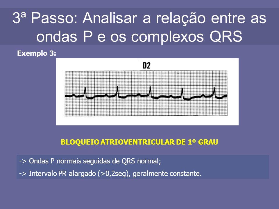 3ª Passo: Analisar a relação entre as ondas P e os complexos QRS Exemplo 3: BLOQUEIO ATRIOVENTRICULAR DE 1º GRAU -> Ondas P normais seguidas de QRS no