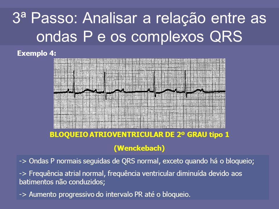 3ª Passo: Analisar a relação entre as ondas P e os complexos QRS Exemplo 4: BLOQUEIO ATRIOVENTRICULAR DE 2º GRAU tipo 1 (Wenckebach) -> Ondas P normai