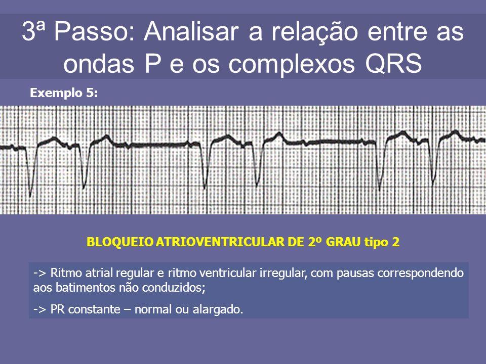 3ª Passo: Analisar a relação entre as ondas P e os complexos QRS Exemplo 5: BLOQUEIO ATRIOVENTRICULAR DE 2º GRAU tipo 2 -> Ritmo atrial regular e ritm