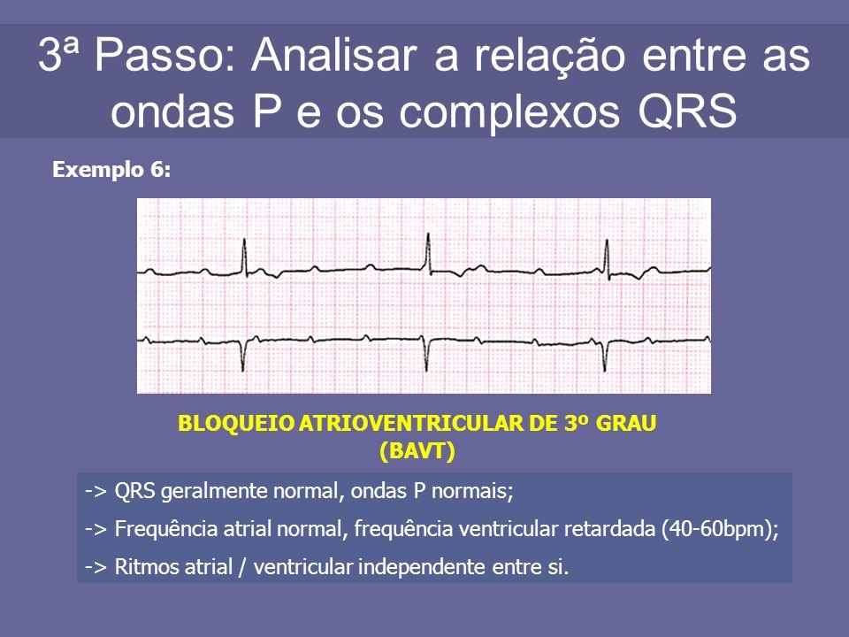 3ª Passo: Analisar a relação entre as ondas P e os complexos QRS Exemplo 6: BLOQUEIO ATRIOVENTRICULAR DE 3º GRAU (BAVT) -> QRS geralmente normal, onda
