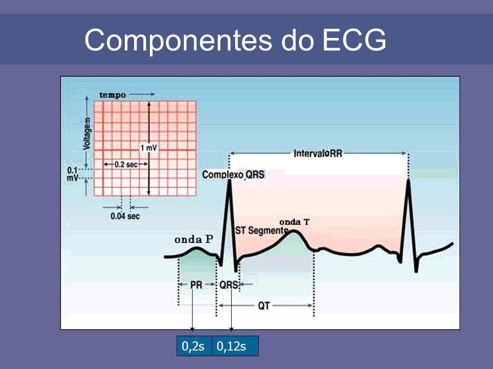 3ª Passo: Analisar a relação entre as ondas P e os complexos QRS Exemplo 3: BLOQUEIO ATRIOVENTRICULAR DE 1º GRAU -> Ondas P normais seguidas de QRS normal; -> Intervalo PR alargado (>0,2seg), geralmente constante.