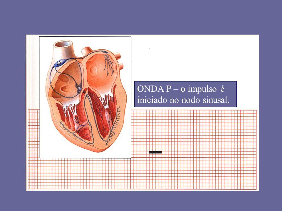 1ª Passo: Analisar o QRS Exemplo 3: TAQUICARDIA VENTRICULAR POLIMÓRFICA: TORSADE DE POINTES -> Complexos QRS mudando, com as pontas em disposição helicoidal; -> Decorre da ação das drogas IA ou outros agentes que prolongam o intervalo QT, além de hipocalemia, hipomagnesemia, etc; -> A suspensão dos agentes causais é fundamental.