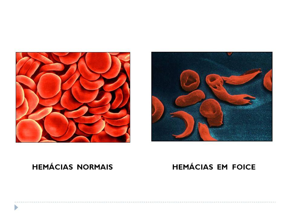 HEMÁCIAS NORMAISHEMÁCIAS EM FOICE
