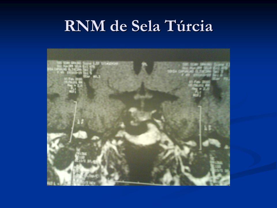 RNM de Sela Túrcia