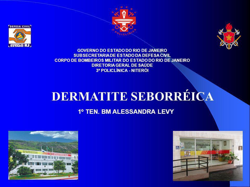 DERMATITE SEBORRÉICA É uma dermatose crônica muito comum, caracterizada por eritema e descamação nas regiões em que as glds sebáceas são mais ativas, por ex.