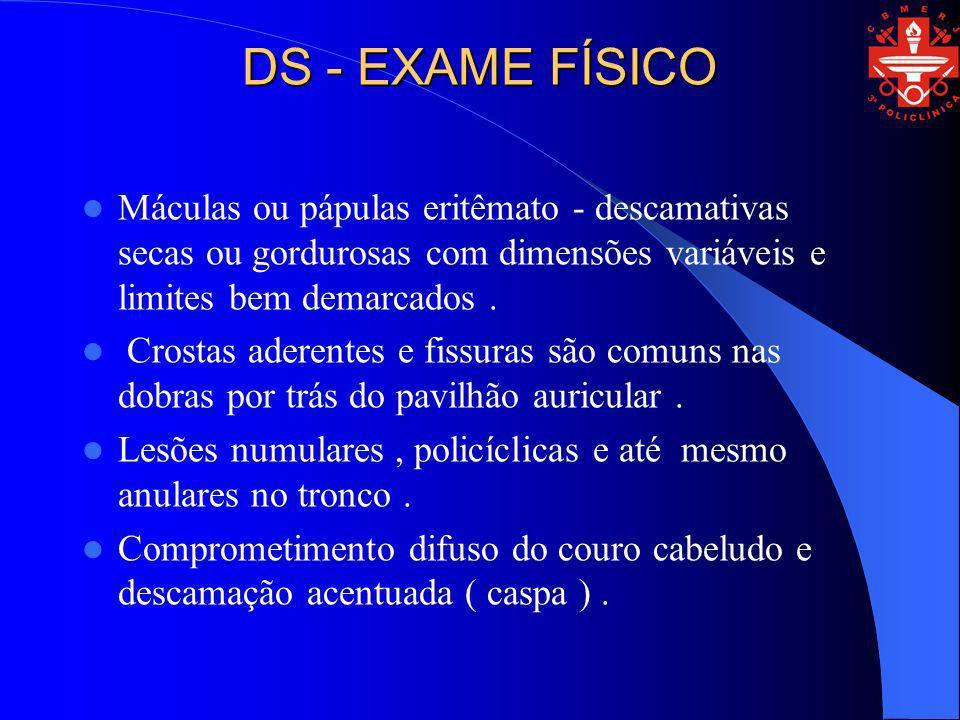DS - EXAME FÍSICO Máculas ou pápulas eritêmato - descamativas secas ou gordurosas com dimensões variáveis e limites bem demarcados. Crostas aderentes