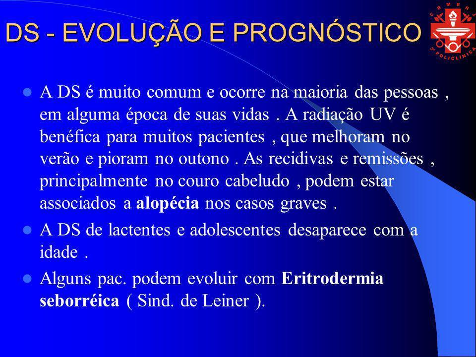 DS - EVOLUÇÃO E PROGNÓSTICO A DS é muito comum e ocorre na maioria das pessoas, em alguma época de suas vidas. A radiação UV é benéfica para muitos pa