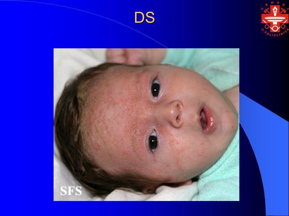 DS - EPIDEMIOLOGIA Idade de Início : da lactência à puberdade, na maioria dos casos entre 20 e 50 anos.