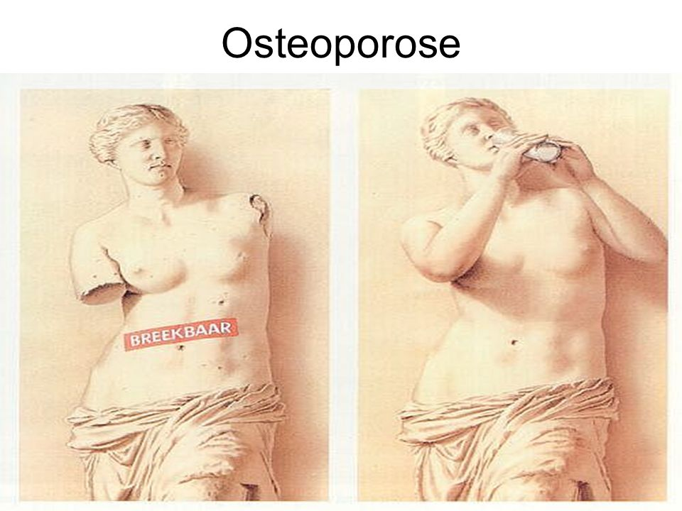 Osteoporose jjjjjjjjjjjjjjjjjjjj