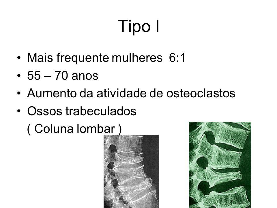 Tipo I Mais frequente mulheres 6:1 55 – 70 anos Aumento da atividade de osteoclastos Ossos trabeculados ( Coluna lombar )
