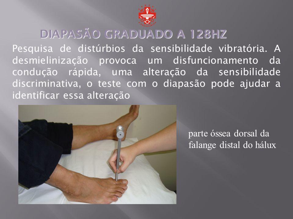 Pesquisa de distúrbios da sensibilidade vibratória. A desmielinização provoca um disfuncionamento da condução rápida, uma alteração da sensibilidade d