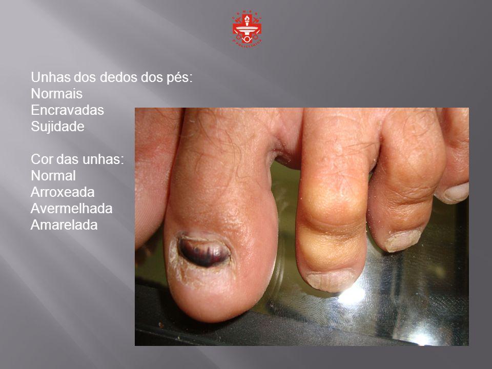Unhas dos dedos dos pés: Normais Encravadas Sujidade Cor das unhas: Normal Arroxeada Avermelhada Amarelada
