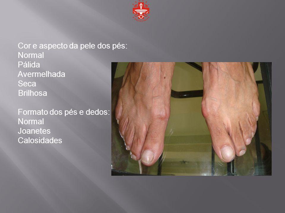 Cor e aspecto da pele dos pés: Normal Pálida Avermelhada Seca Brilhosa Formato dos pés e dedos: Normal Joanetes Calosidades