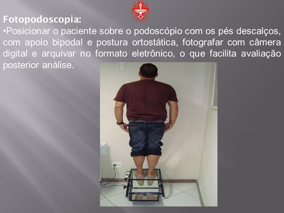 Fotopodoscopia: Posicionar o paciente sobre o podoscópio com os pés descalços, com apoio bipodal e postura ortostática, fotografar com câmera digital