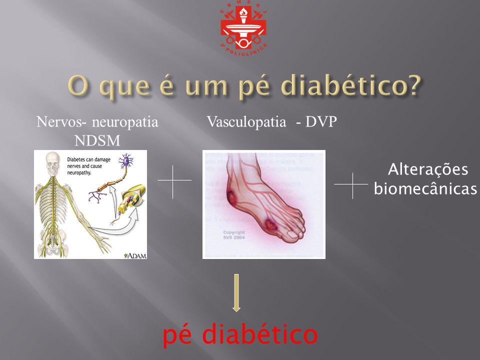 Alterações biomecânicas pé diabético Nervos- neuropatia NDSM Vasculopatia - DVP