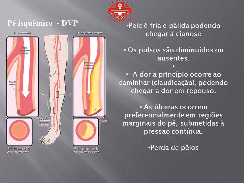 Pele é fria e pálida podendo chegar à cianose Os pulsos são diminuídos ou ausentes. A dor a princípio ocorre ao caminhar (claudicação), podendo chegar