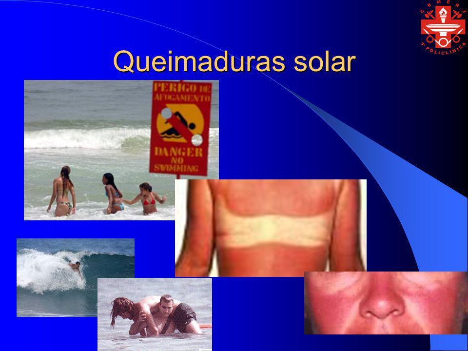 Queimaduras solar
