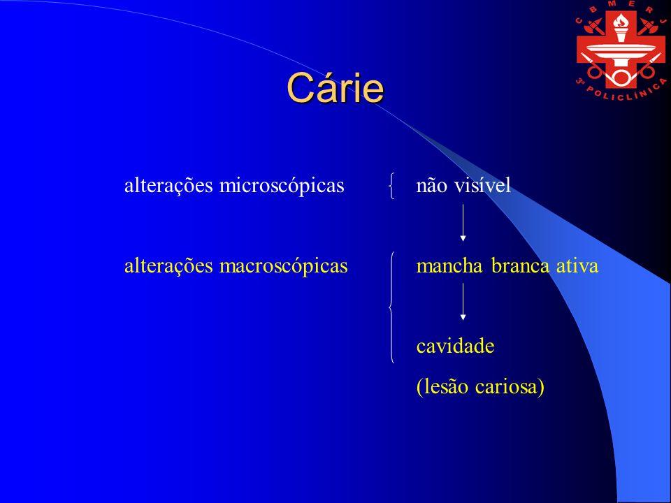 Cárie alterações microscópicas alterações macroscópicas não visível mancha branca ativa cavidade (lesão cariosa)