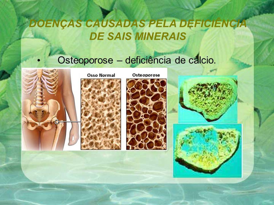 DOENÇAS CAUSADAS PELA DEFICIÊNCIA DE SAIS MINERAIS Osteoporose – deficiência de cálcio.