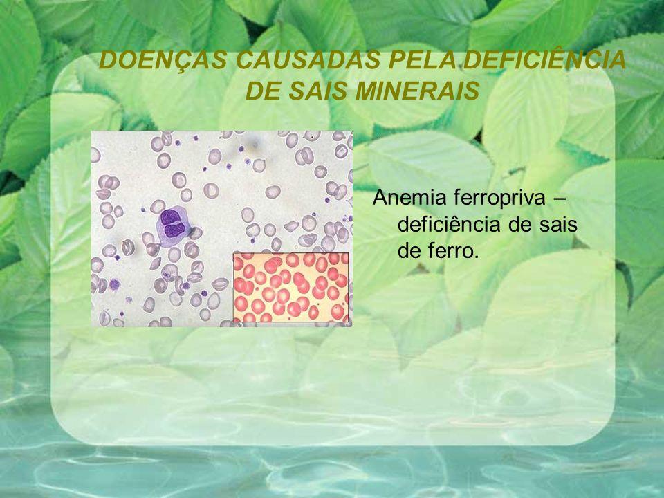DOENÇAS CAUSADAS PELA DEFICIÊNCIA DE SAIS MINERAIS Anemia ferropriva – deficiência de sais de ferro.