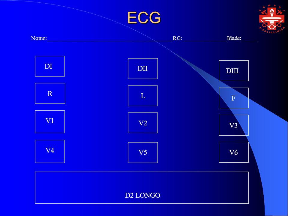 ECG Nome: ____________________________________________ RG: _______________ Idade: _____ DI DII DIII R L F V1 V2 V3 V4 V5V6 D2 LONGO