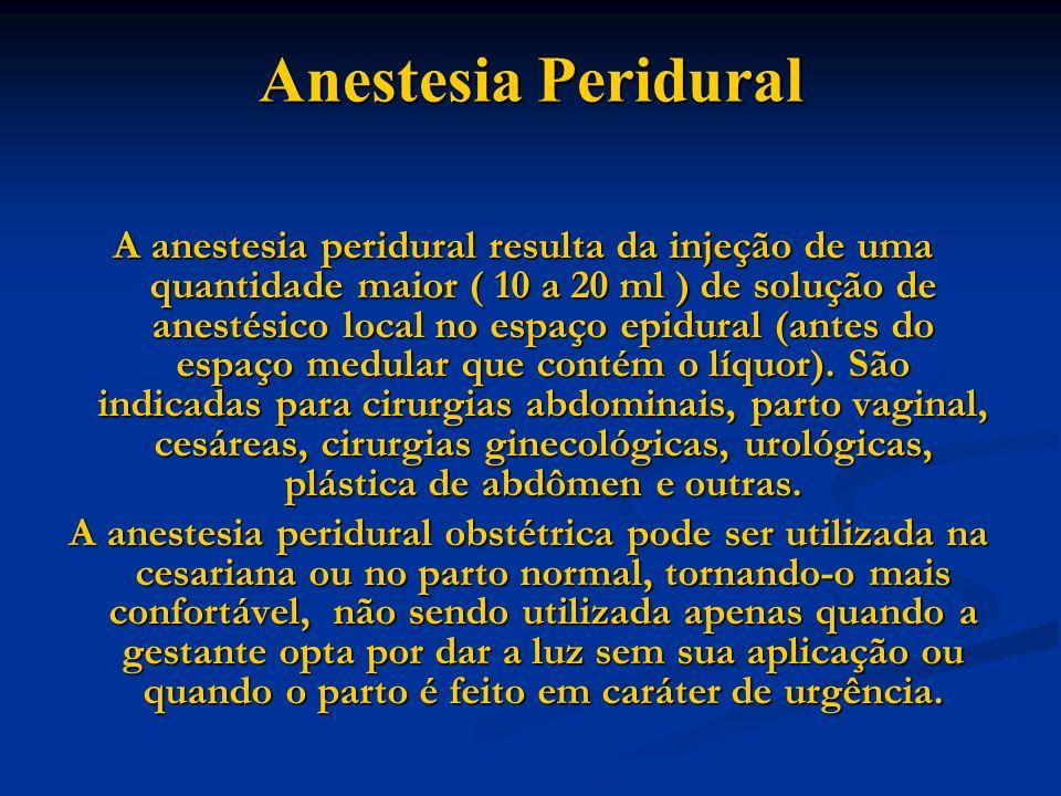 Anestesia Peridural A anestesia peridural resulta da injeção de uma quantidade maior ( 10 a 20 ml ) de solução de anestésico local no espaço epidural