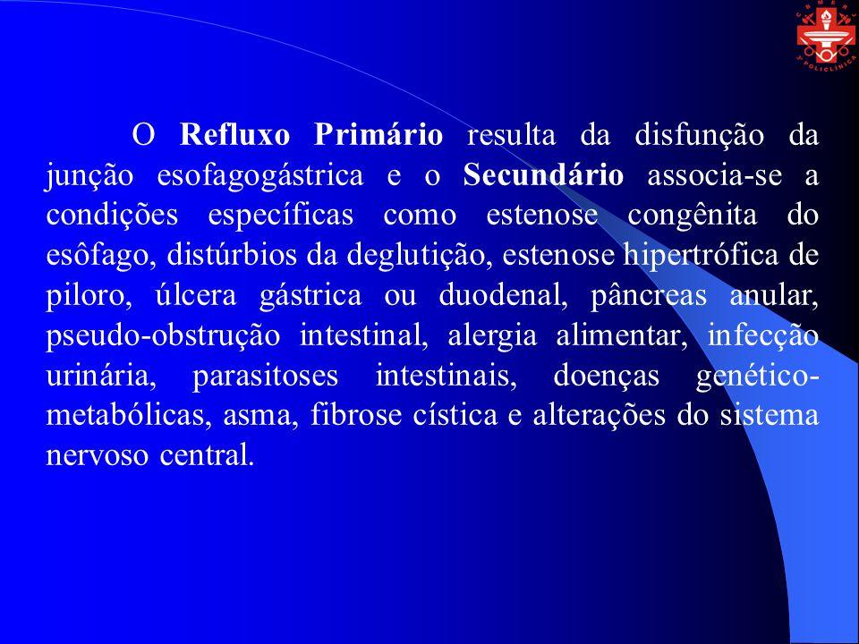 O Refluxo Primário resulta da disfunção da junção esofagogástrica e o Secundário associa-se a condições específicas como estenose congênita do esôfago
