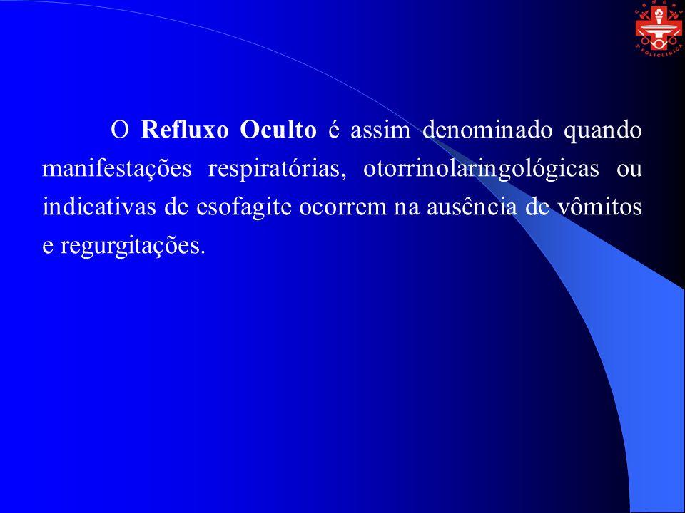 O Refluxo Oculto é assim denominado quando manifestações respiratórias, otorrinolaringológicas ou indicativas de esofagite ocorrem na ausência de vômi