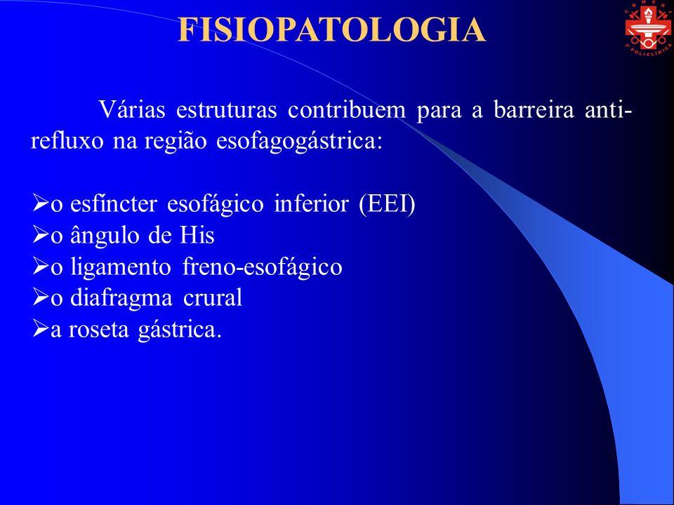 FISIOPATOLOGIA Várias estruturas contribuem para a barreira anti- refluxo na região esofagogástrica: o esfíncter esofágico inferior (EEI) o ângulo de His o ligamento freno-esofágico o diafragma crural a roseta gástrica.