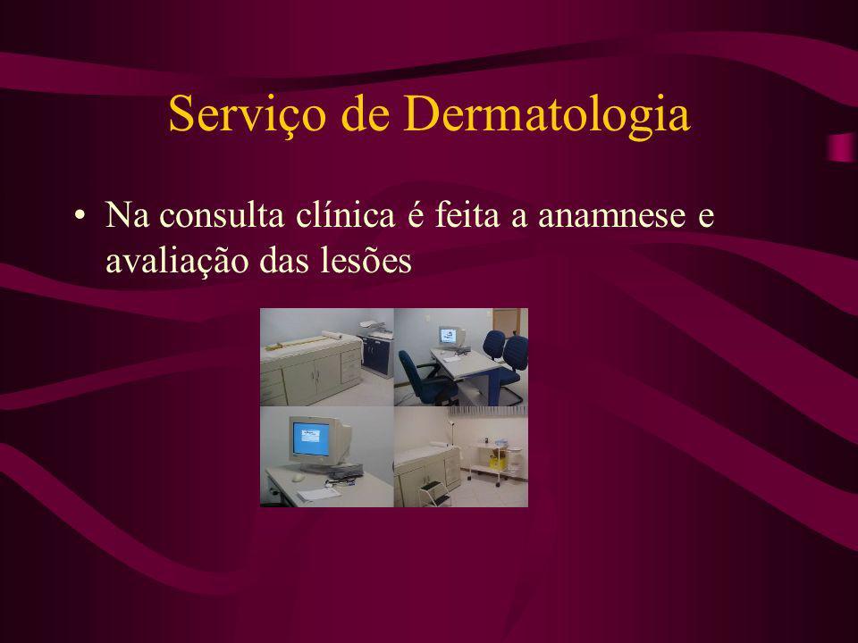 Serviço de Dermatologia Na consulta clínica é feita a anamnese e avaliação das lesões
