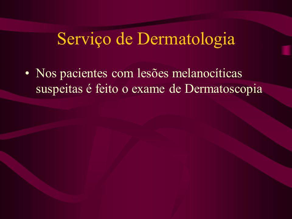 Serviço de Dermatologia Nos pacientes com lesões melanocíticas suspeitas é feito o exame de Dermatoscopia