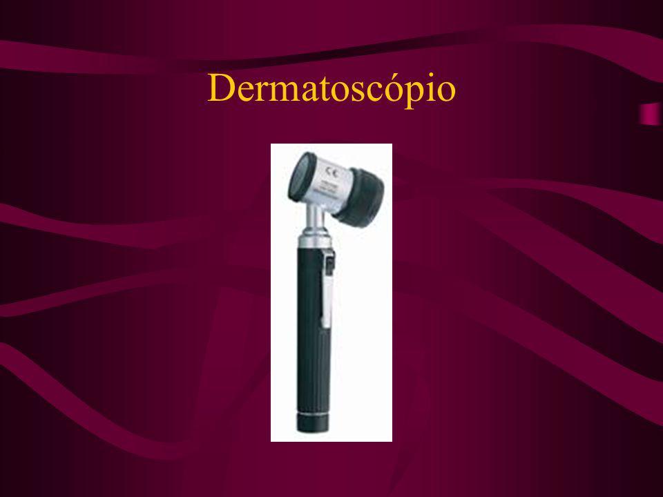 Dermatoscopia Exame de microscopia de superfície, não invasivo, indicado para análise de lesões cutâneas pigmentadas, com o objetivo de classificá-las em lesões benignas, suspeitas ou altamente suspeitas de melanoma, aumentando a acurácia diagnóstica deste último em 30%.