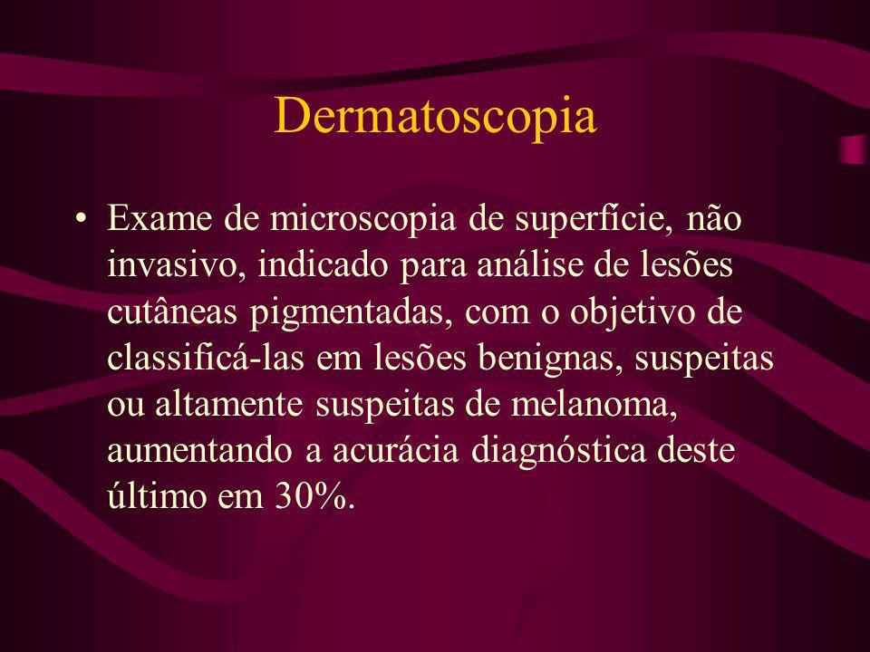 Dermatoscopia Útil no acompanhamento de lesões melanocíticas e no diagnóstico de outras lesões pigmentadas tais como: ceratose seborrêica, nevo azul, carcinoma basocelular pigmentado, hemangioma, hematoma subungueal,...