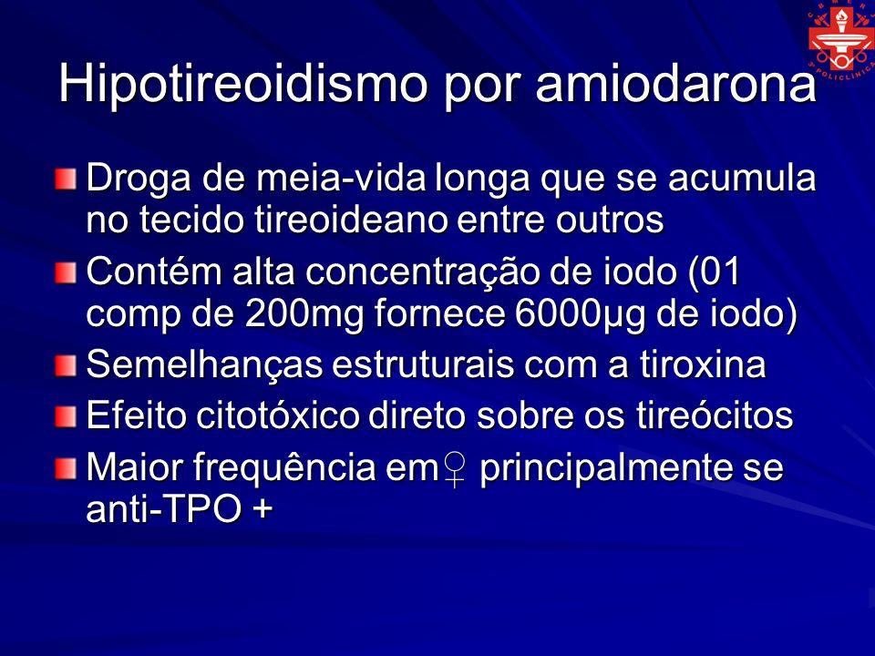 Hipotireoidismo por amiodarona Droga de meia-vida longa que se acumula no tecido tireoideano entre outros Contém alta concentração de iodo (01 comp de