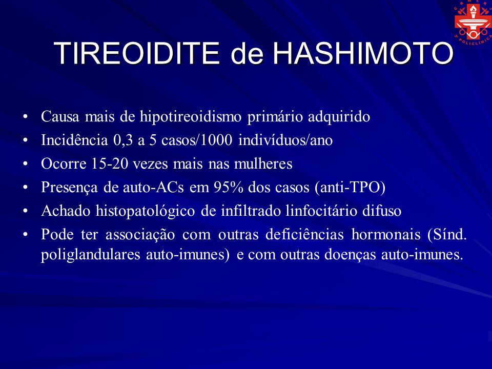 TIREOIDITE de HASHIMOTO Causa mais de hipotireoidismo primário adquirido Incidência 0,3 a 5 casos/1000 indivíduos/ano Ocorre 15-20 vezes mais nas mulh