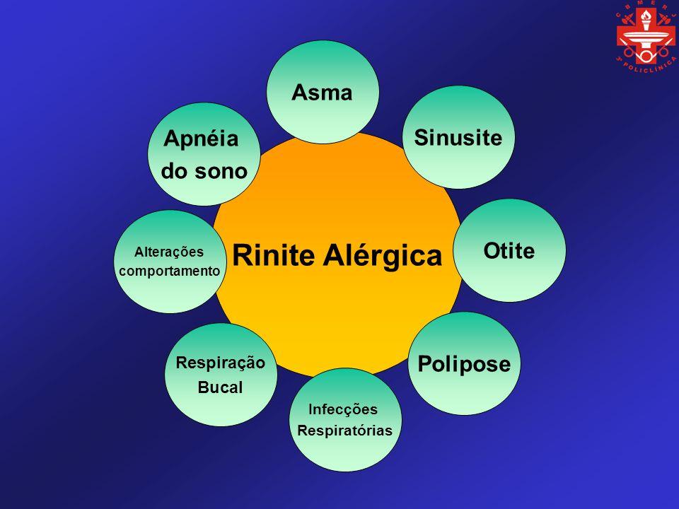 Rinite Alérgica Asma Sinusite Otite Polipose Infecções Respiratórias Respiração Bucal Alterações comportamento Apnéia do sono