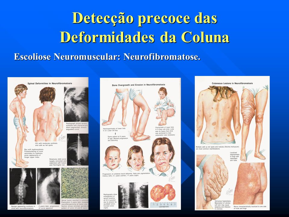 Escoliose congênita -Defeito de segmentação: circunferencial. (Vértebras em bloco). -Unilateral (barras) -Síndrome de Klippel – Feil – forma grave de