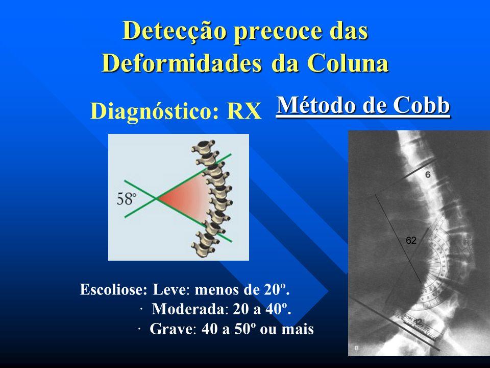 Gibosidade Gibosidade Diagnóstico:Teste de Inclinação Anterior do Tronco Detecção precoce das Deformidades da Coluna