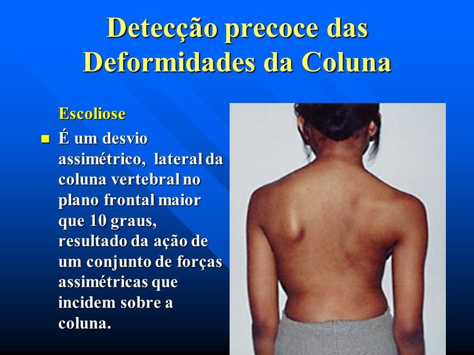 Detecção precoce das Deformidades da Coluna Secretaria de Estado da Defesa Civil Corpo de Bombeiros Militar do Estado do Rio de Janeiro Diretoria Gera