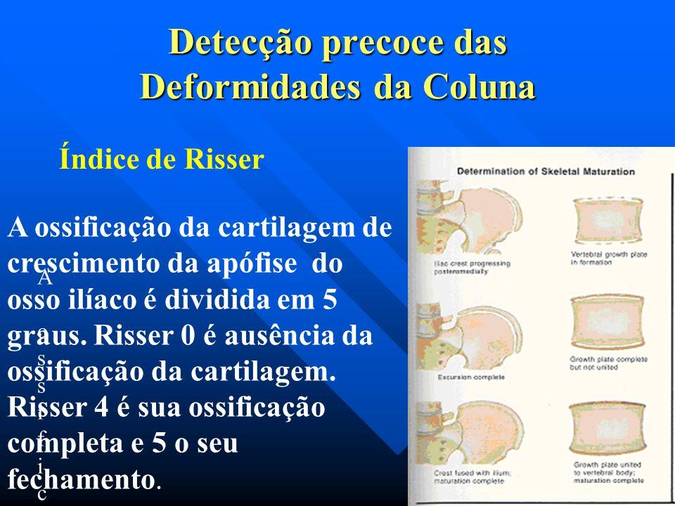Diagnóstico: RX Método de Cobb Escoliose: Leve: menos de 20º. · Moderada: 20 a 40º. · Grave: 40 a 50º ou mais
