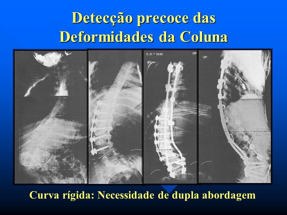 Curvas maiores de 50º Cobb flexíveis : Curvas maiores de 50º Cobb flexíveis : artrodese posterior artrodese posterior instrumentação metálica instrume